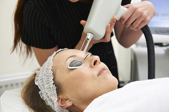 Woman undergoing cosmetic laser skin resurfacing